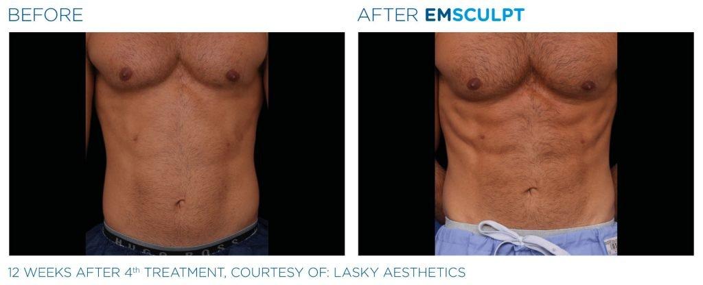 EMSCULPT - Before & After - Heal n Cure Medical Wellness - Dr. Meena