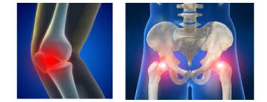 knee example